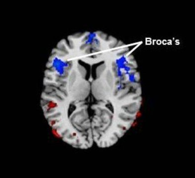 Aphasie de Broca : diagnostic, causes et réhabilitation